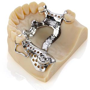 3D nyomtatás - forradalom a fogászati iparban